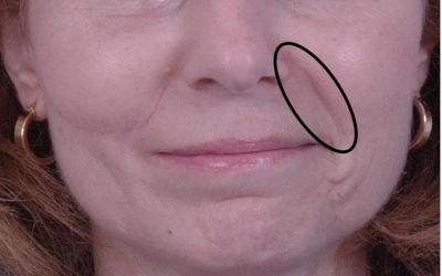 Causes and treatments for nasolabial folds