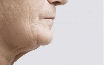 How to get rid of jowls